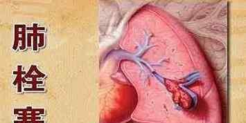 肺栓塞的临床表现 肺栓塞的临床表现是什么